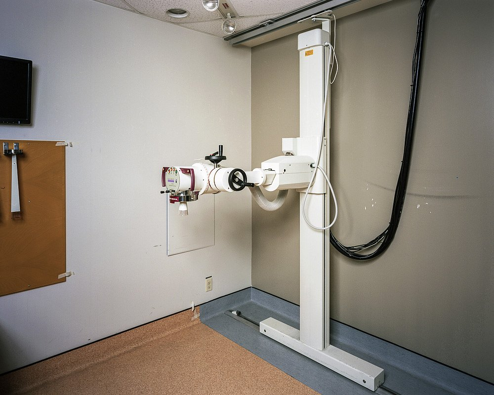 External Beam Cancer Radiotherpy Room